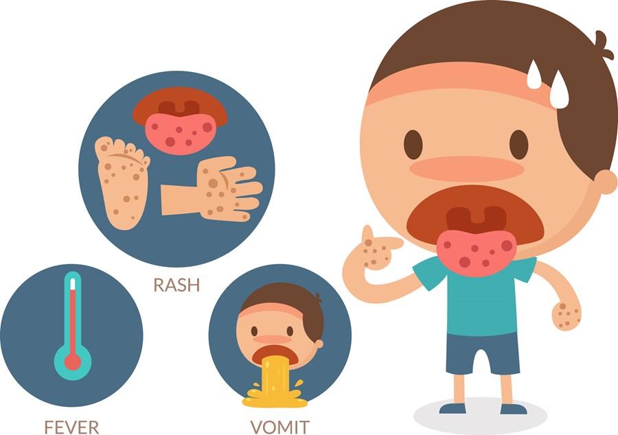 Phòng bệnh tay chân miệng với Dung dịch Dr.ECAC